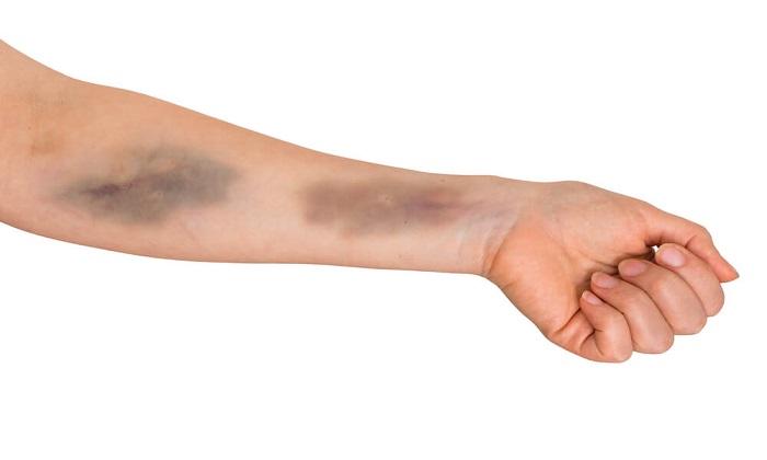 ۳ مکمل غذایی برای پیشگیری از کبودی پوست