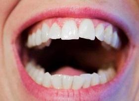 ۵ درمان خانگی برای پوسیدگی دندان