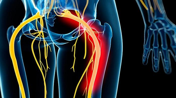 ۵ روش خانگی برای تسکین درد سیاتیک