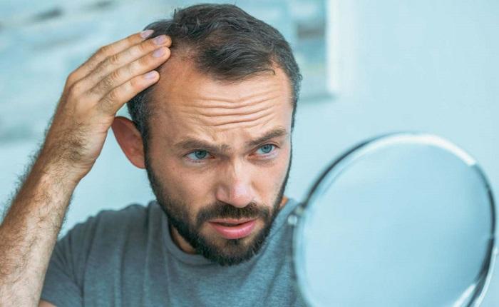 8 درمان طبیعی برای موهای نازک