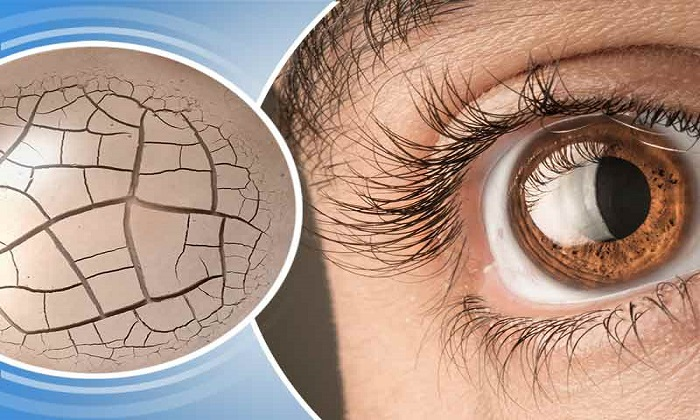 ۸ درمان طبیعی خشکی چشم