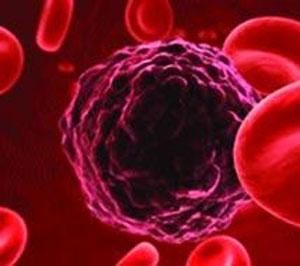 از سرطان خون نترسید