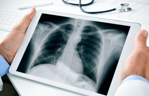 از نشانههای هشدار دهنده بیماری ریه