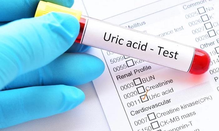 اسید اوریک و 6 روش طبیعی برای کاهش آن