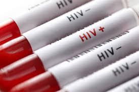 """اعلام جدیدترین آمار """"ایدز"""" در کشور / نیمی از مبتلایان در گروه سنی ۲۰ تا ۳۵ سال"""
