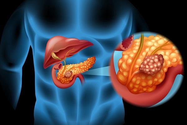 این ۶ نشانه سرطان لوزالمعده را نادیده نگیرید