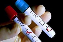 تاثیرات روانی ابتلا به ایدز در زنان