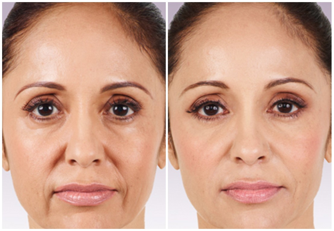 تزریق ژل در کلینیک پوست و مو رز