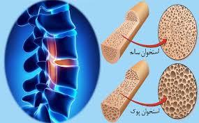 تست تراکم استخوان برای چه افرادی ضروری است؟