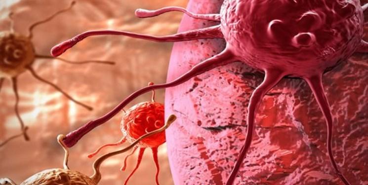 تشخیص سریع سرطان دهانه رحم با هوش مصنوعی