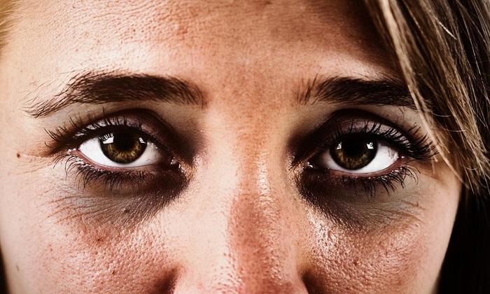 رازهایی طبیعی برای بهبود حلقههای تیره زیر چشم