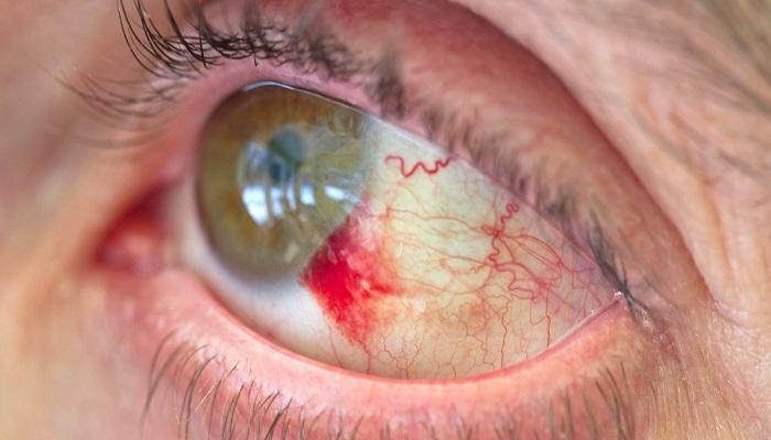 خونریزی چشم و نکاتی مهم درباره آن