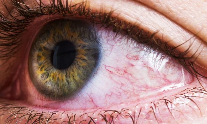 دانستنیهای درباره لنفوم چشم