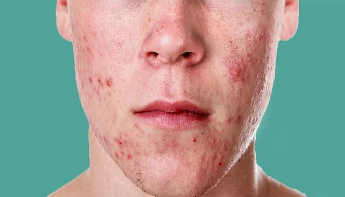درمان آکنه: اسید سالیسیلیک در برابر بنزوئیل پراکسید