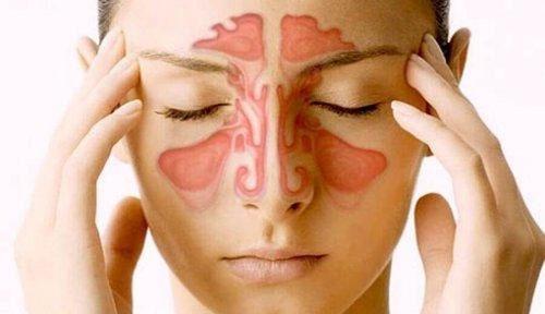 درمان سینوزیت با روش های خانگی