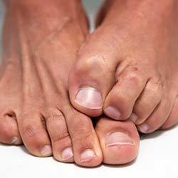 درمانهای خانگی برای قارچ ناخن پا