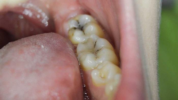 رابطه باکتری دهان و تهاجم سرطان کولورکتال