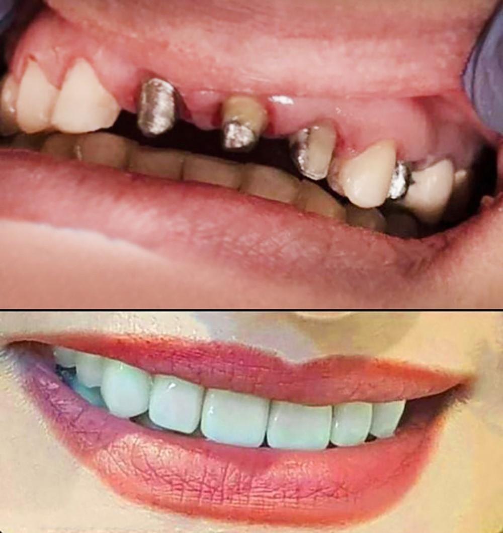 رازهای زیبایی با ایمپلنت دندان