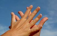 راه های درمان عرق کردن کف دست و پا