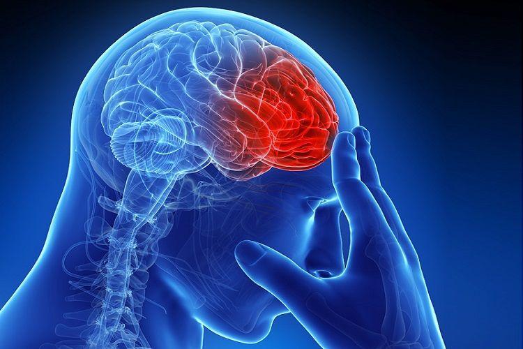 سکته مغزی دومین عامل مرگ ایرانیها / زمان طلایی درمان سکته مغزی