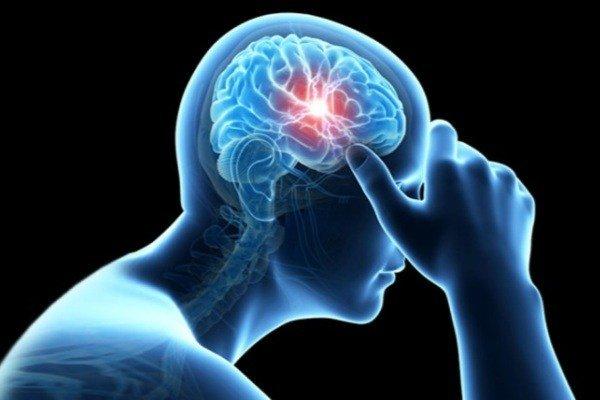 سکته مغزی چگونه اتفاق می افتد؟