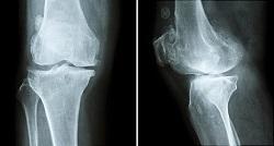 شکستگی تنشی استخوان چیست؟