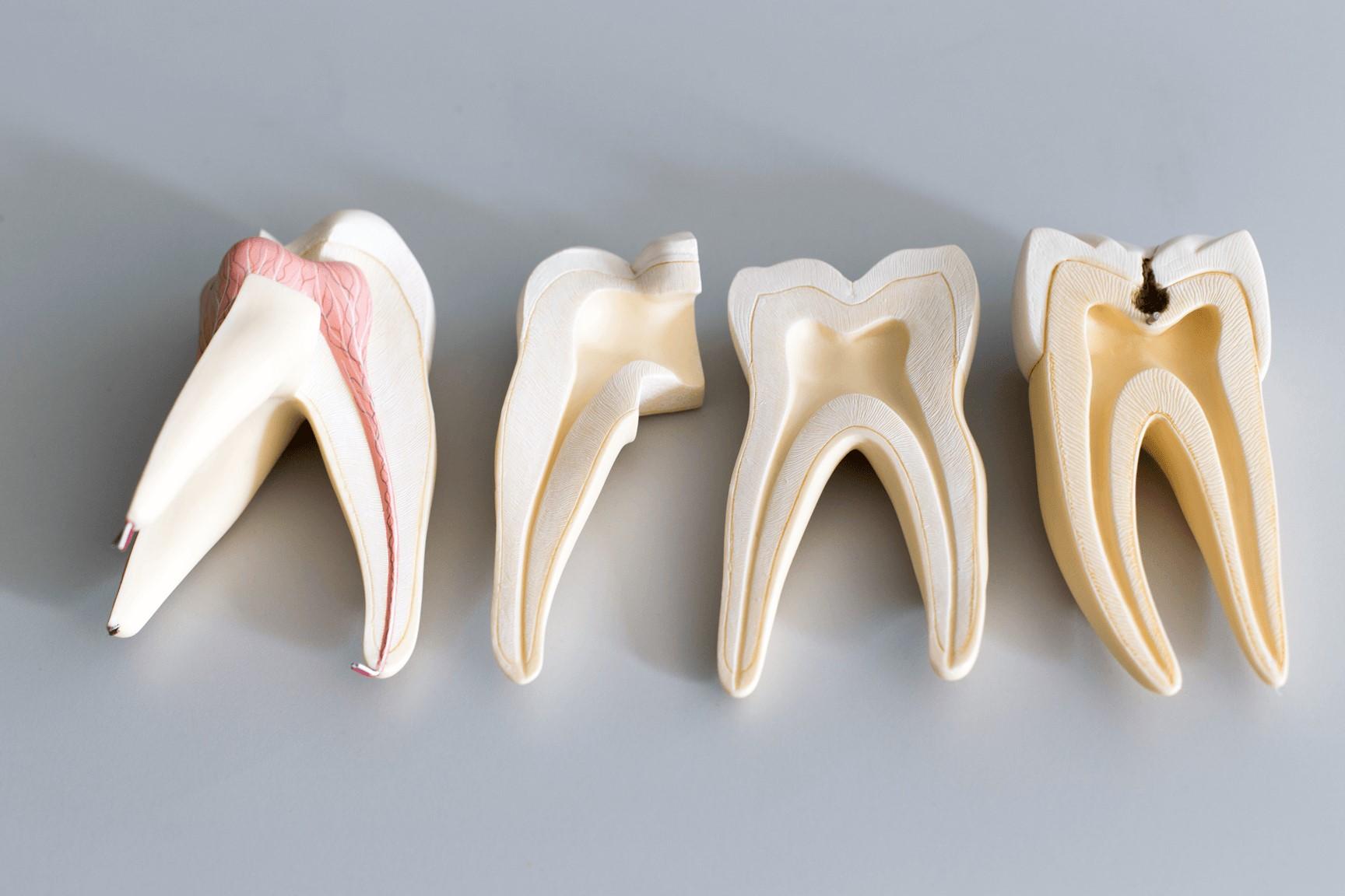 علائم درد ریشه دندان