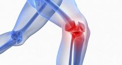 علت آسیب زانو در حین ورزش چیست؟