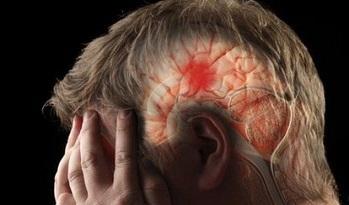 علل سکته مغزی چیست