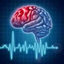 علل و علایم بروز سکته مغزی