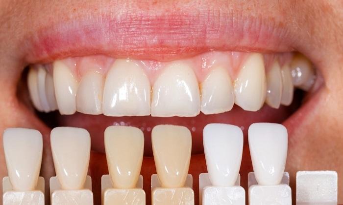 فرمول غذایی برای سفید کردن دندانها