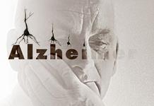 نشانههای اولیه آلزایمر