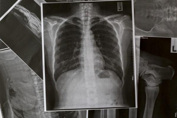 نشانههای هشدار دهنده آمبولی ریه