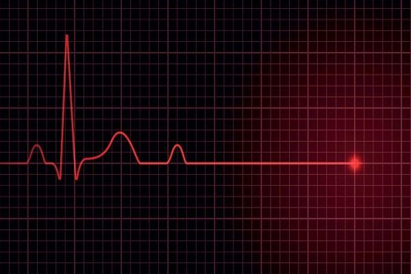 وقتی ضربان قلب متوقف میشود