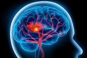 پایین بودن سطح کلسترول و خطر سکته مغزی