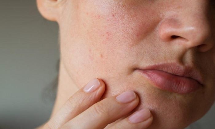 پوست و ظهور 6 نشانه بیماری