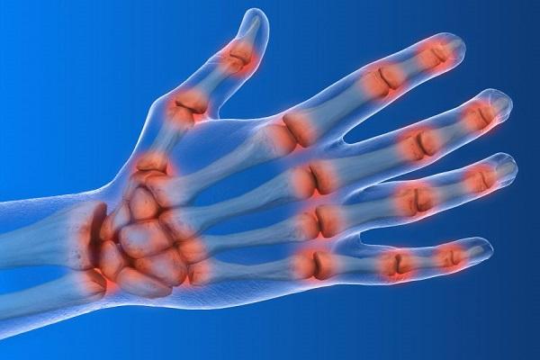 چرایی احساس درد در دست ها