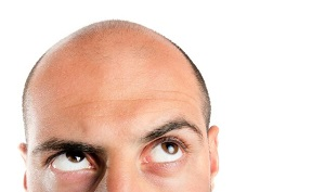 چه عواملی باعث ریزش مو می شود؟