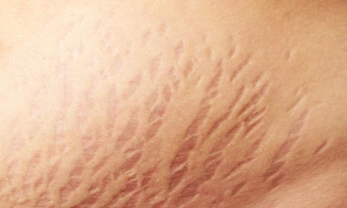بهبود ترکهای پوست با یک کرم دستساز