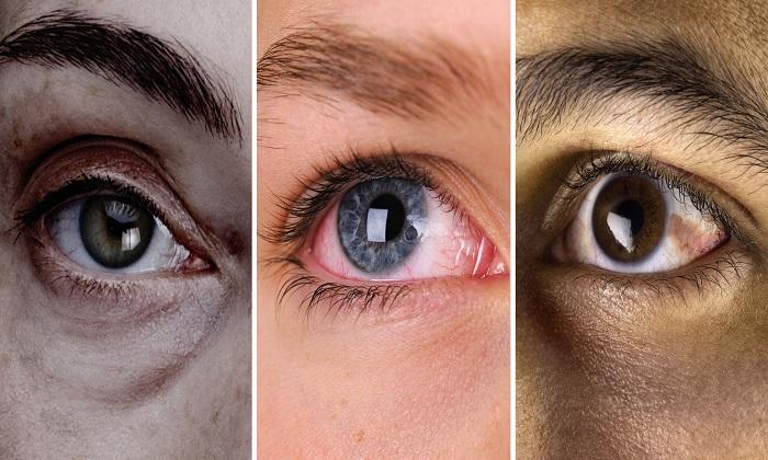 چشم و 17 نشانه هشدار دهنده