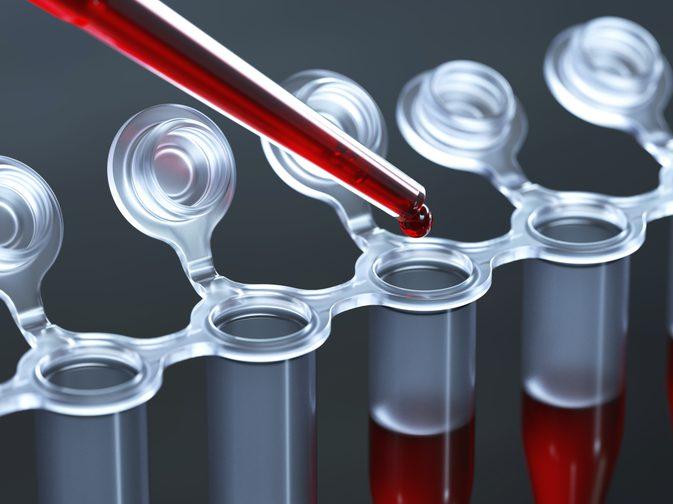 neutrophils چیست | نوتروفیل پایین نشانه چیست