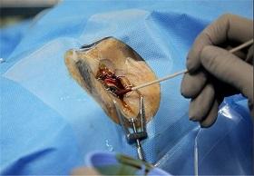 """هشدار درباره """"جراحی چشم"""" برای افراد زیر ۱۸ سال"""